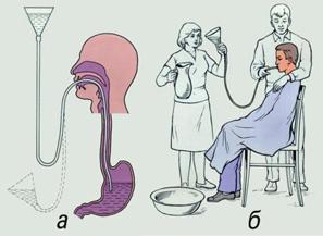 Отравление - первая помощь. Промывание желудка с помощью зонда.